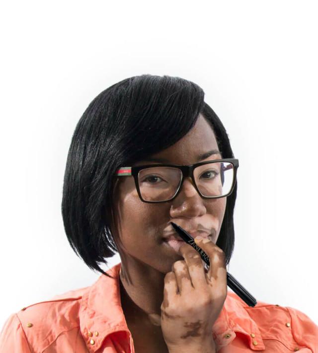 zanderm-vitiligo-concealer