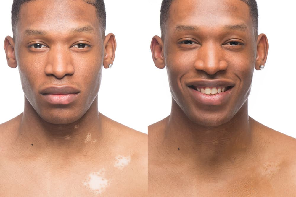 Dan Before & After Applying Zanderm Vitiligo Concealer