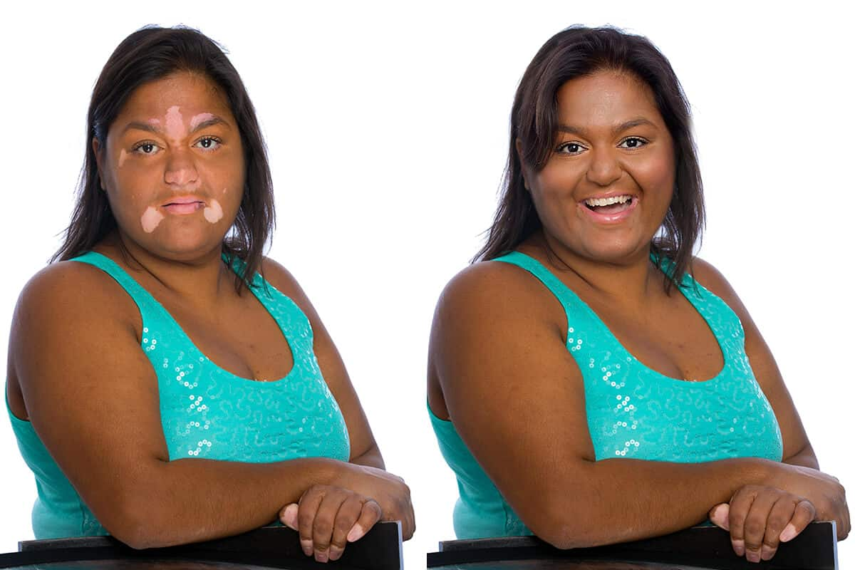 Melinda Before & After Applying Zanderm Vitiligo Concealer