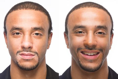 Omar Before & After Applying Zanderm Vitiligo Concealer