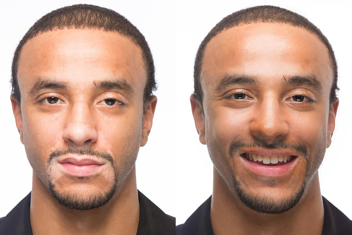 Omar Before & After Applying Zanderm Vitiligo Concealer