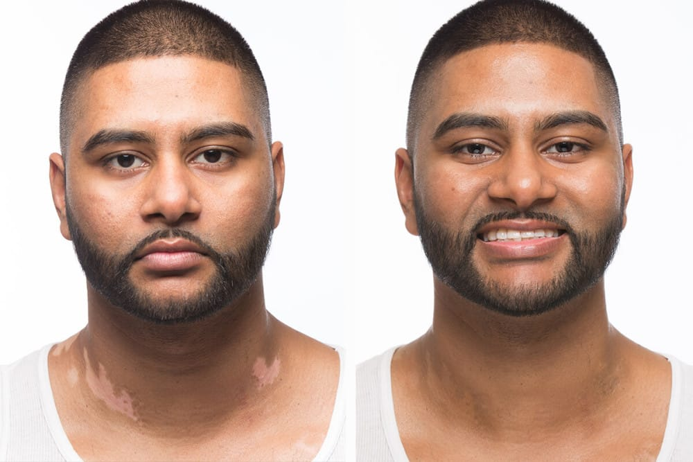 Shazaad Before & After Applying Zanderm Vitiligo Concealer