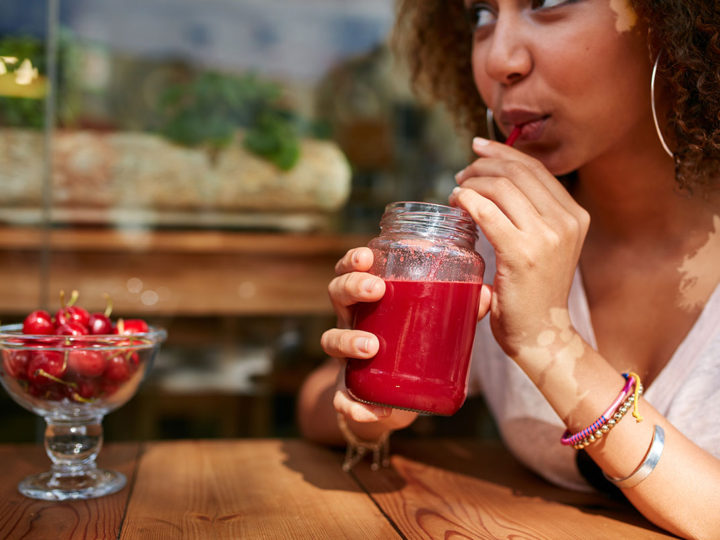 Vitiligo and Your Diet: What Works?