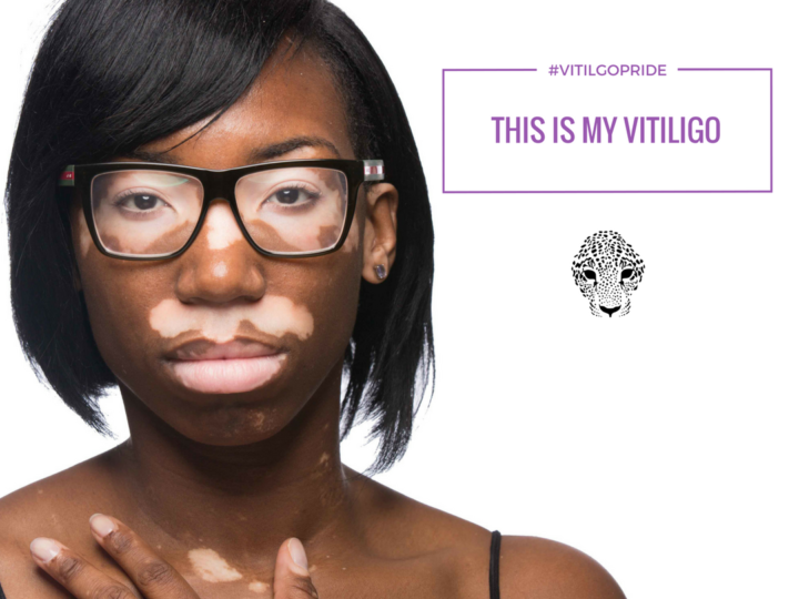 Vitiligo Support – Finding Help & Information
