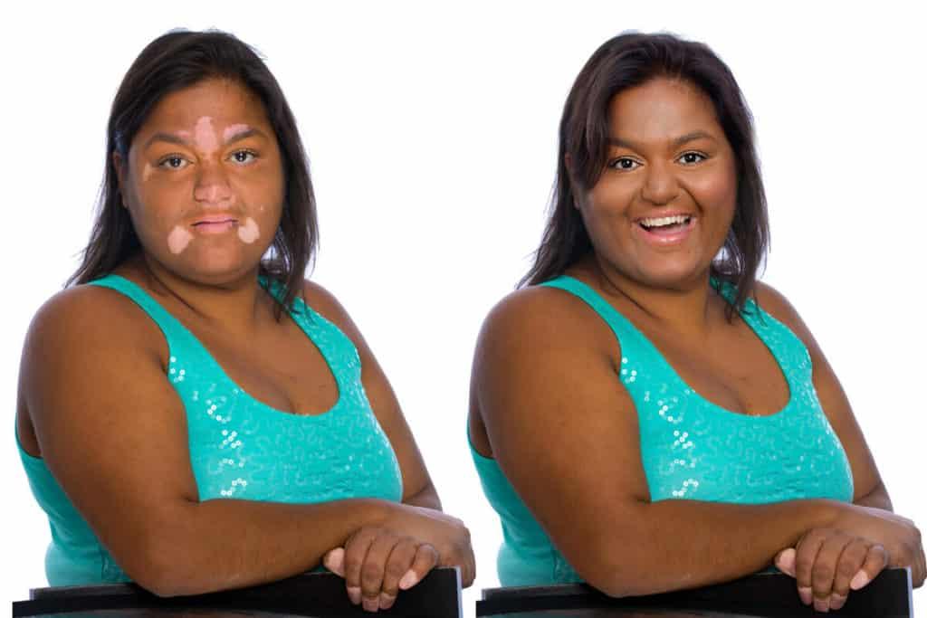 Warm Bronze - Before & After Vitiligo Cover